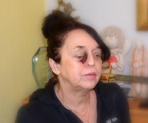 Pomóżmy pani Grażynie w walce z cierpieniem